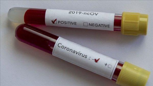 واکسن کرونا در راه است!